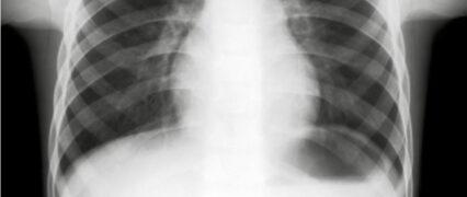 Asbest, rygning og arbejdsskade